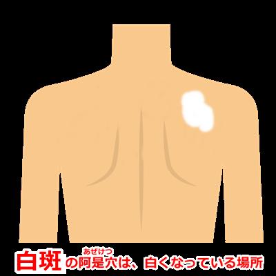 尋常性白斑の阿是穴