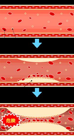 動脈硬化の図式