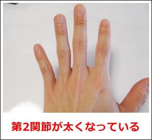 関節を鳴らして太くなった指