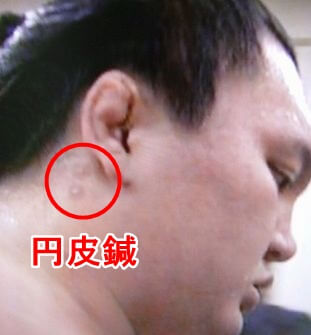 白鵬選手 円皮鍼画像