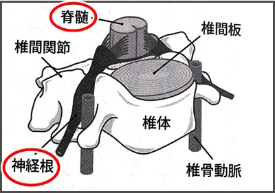 椎体の画像