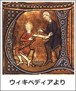 中世ヨーロッパ時代の瀉血
