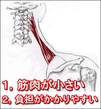 肩甲挙筋がこりやすいポイント