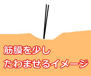 筋膜を鍼でたわませるイメージ