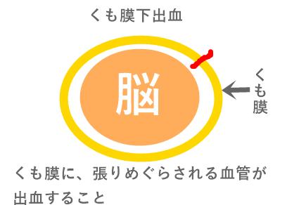 くも膜下出血図説