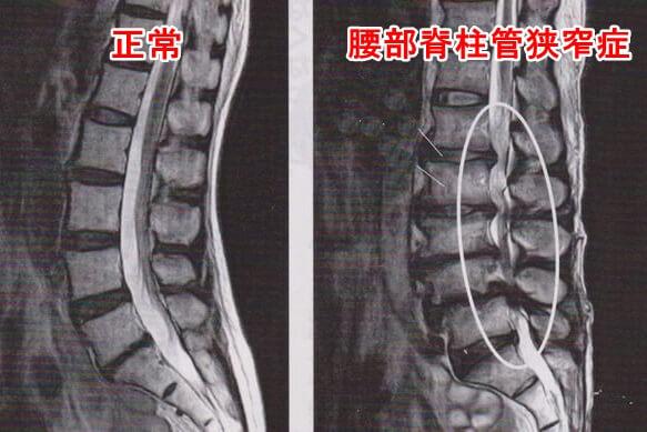 脊柱管狭窄症のレントゲン図