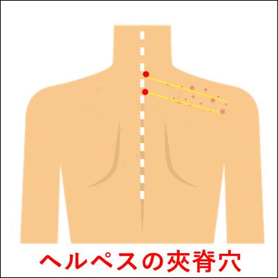 ヘルペスの夾脊穴