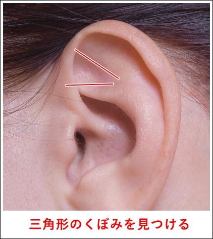 耳ツボ神門2