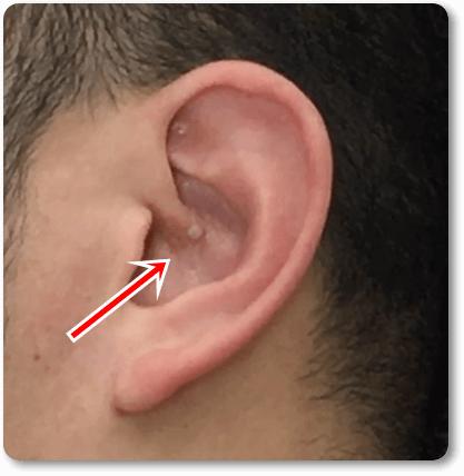 セルフ耳ツボのやり方6