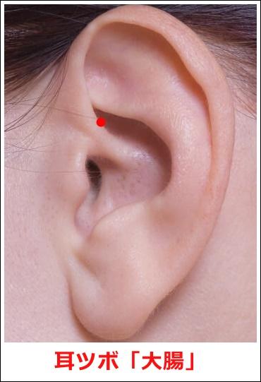 耳ツボ大腸