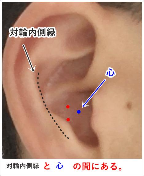 耳ツボ肺の位置