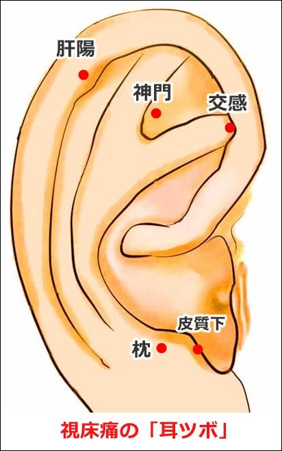 視床痛の耳ツボ