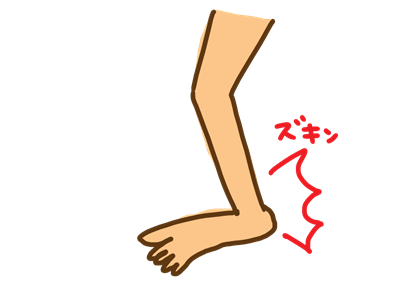 足首の捻挫イラスト