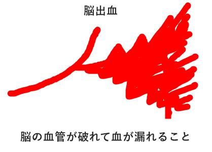脳出血の図説