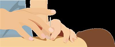 鍼灸治療イラスト