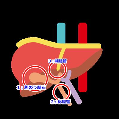 胆石症の図解