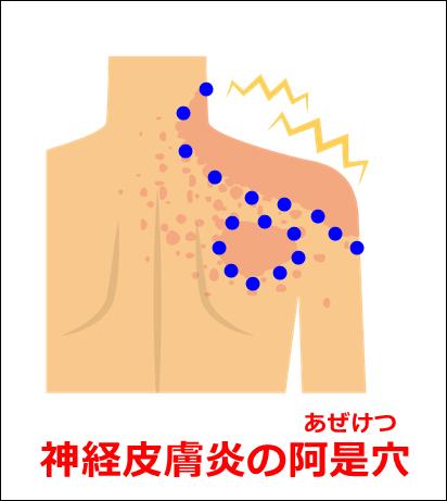神経皮膚炎の阿是穴