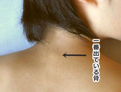 第7頚椎の場所