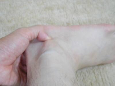 申脈の指圧