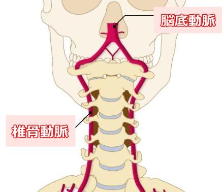 椎骨脳底動脈イラスト