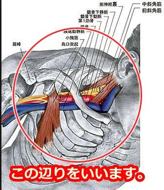 胸郭出口症候群の場所はこの辺りをいいます。
