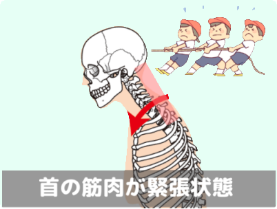 首の筋肉が緊張状態