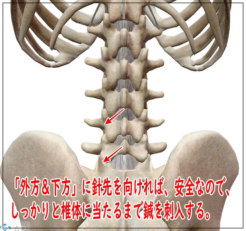 多裂筋の刺入方向