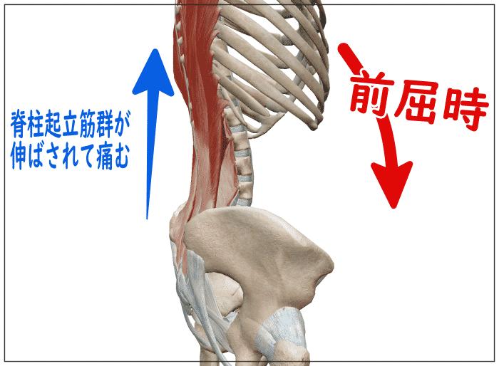 腰の前屈痛