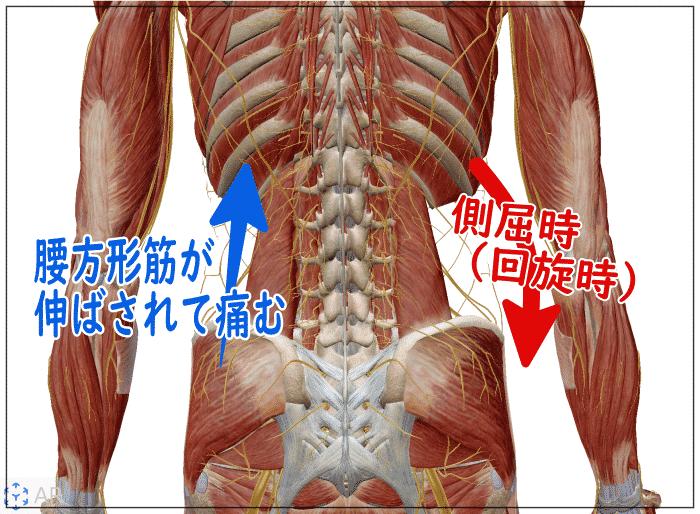 腰の側屈痛