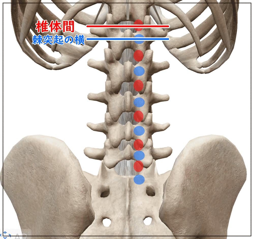 腰部 多裂筋の刺入位置