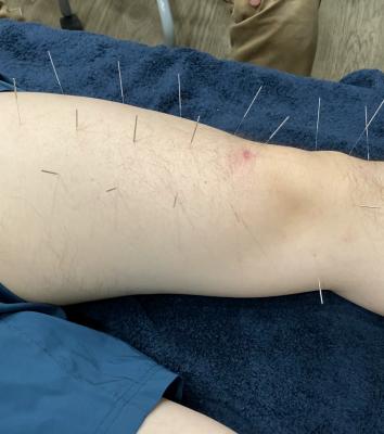ほのしん講座 膝治療