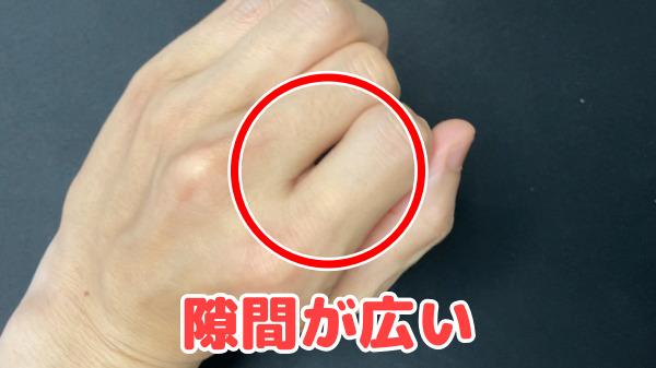 示指と中指の隙間