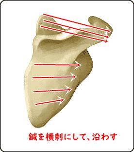 棘上筋・棘下筋に横刺