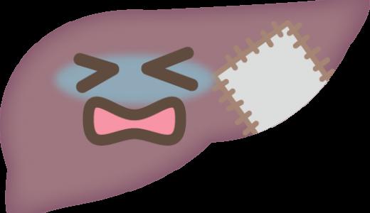慢性肝炎のツボ