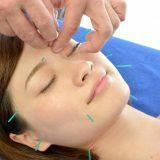 鍼灸治療 顔