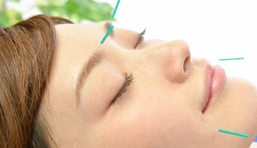 視力回復に鍼灸治療は効果がありますか?目が良くなるの?