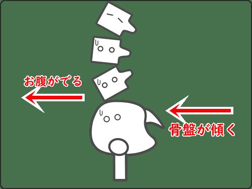 悪い姿勢の骨盤 イメージ
