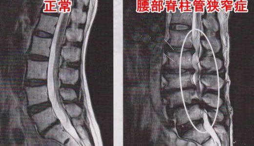 腰部脊柱管狭窄症になったらどうすればいい?手術は?鍼灸師の答え!