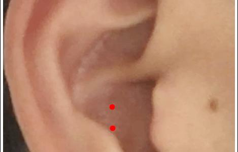 耳ツボ【肺】