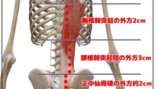 腰痛(ギックリ腰)の判別&鍼灸治療「筋肉由来で考えたケース」