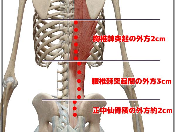 脊柱起立筋への鍼灸治療