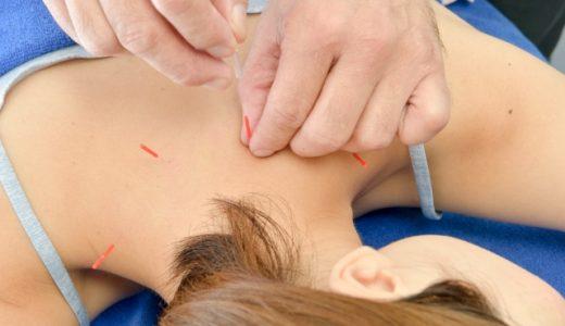 鍼灸・マッサージで筋肉の治療ポイントは?筋硬結できやすいのは?