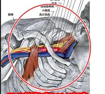 胸郭出口症候群といわれたら、、、上手な付き合い方もあります。