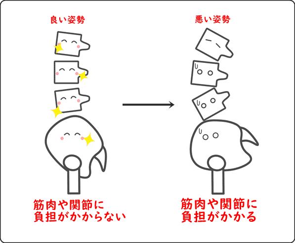 腰痛と姿勢の図説